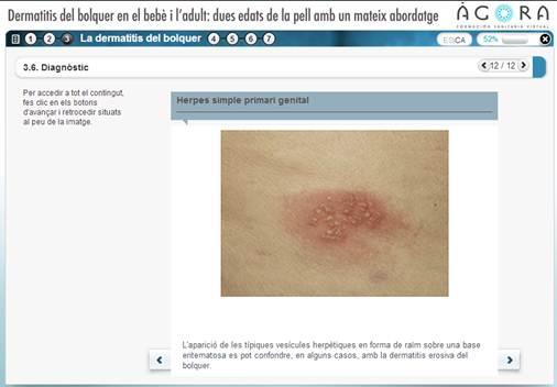 dermatitisbloquer-material