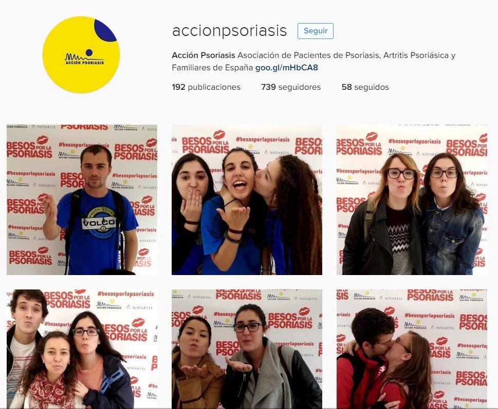 instagram-accio-psoriasis