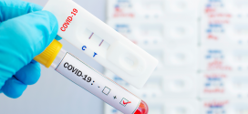 El CCFC valora positivament que les farmàcies puguin dispensar tests d'antígens i remarca la tasca d'educació sanitària dels farmacèutics a l'hora de realitzar-los i contextualitzar els resultats