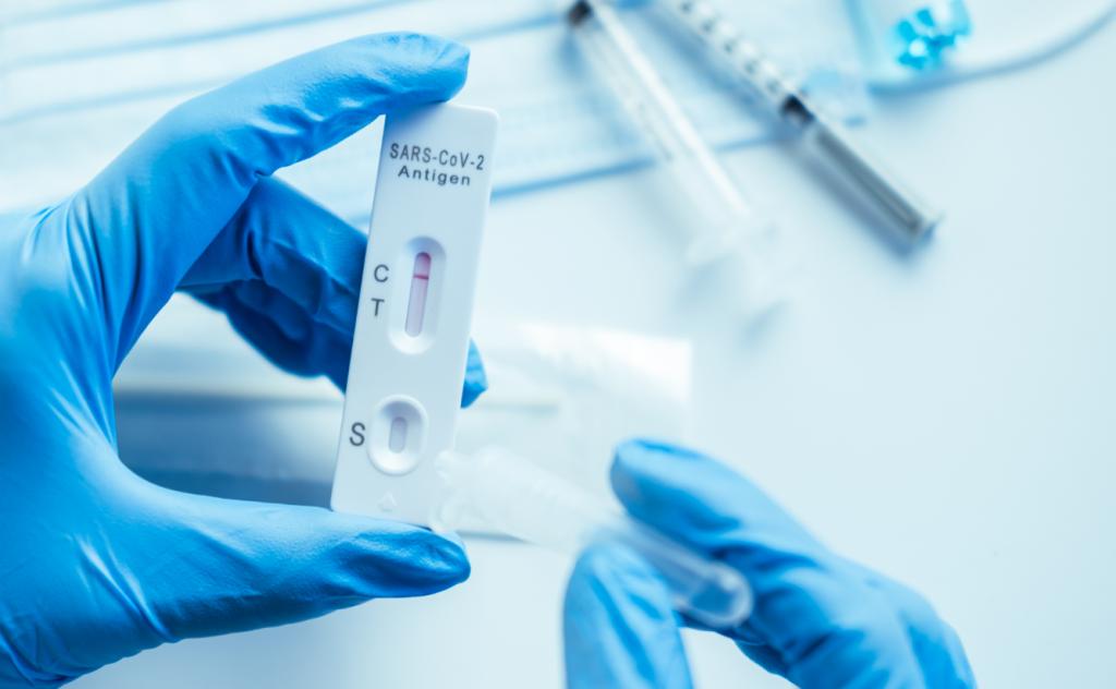 Des del dijous 22 de juliol les farmàcies ja poden dispensar tests d'antígens d'autodiagnòstic sense prescripció mèdica.